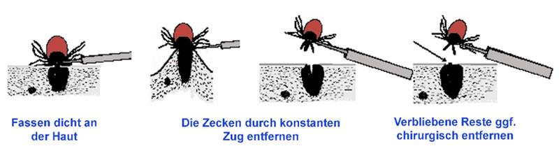 Abb. 2: Schematische Darstellung der Zeckenentfernung (aus Fingerle et al. Kap.3.2-13)